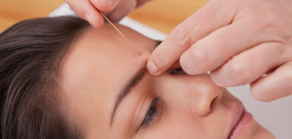 Acupuncture needles points treatment for headache