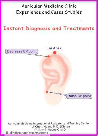Eastern Auricular Medicine clinic experience & case studies