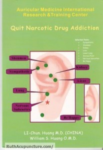 Eastern Auricular Medicine quit narcotic drug addiction book by Dr Li Chun Huang