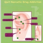 Eastern auricular medicine quict narcotic drug addiction book by Dr Li Chun Huang